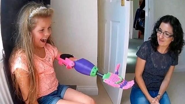 Usa su brazo impreso en 3D por primera vez